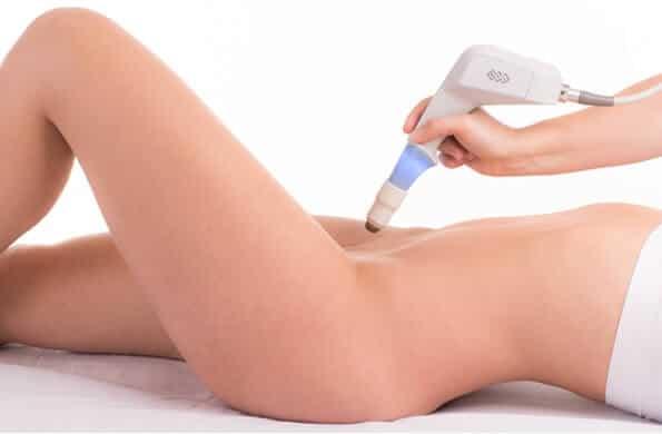 rejuvanare vaginala ultra femme 360