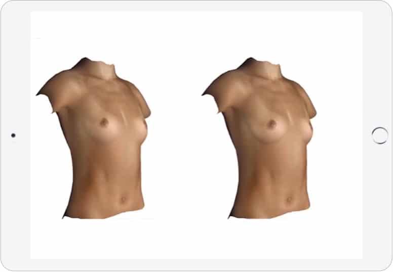 Augmentare mamara si Lifting mamar
